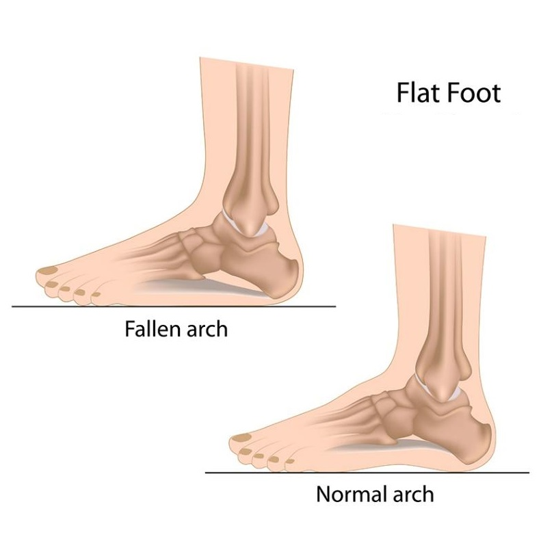 flat-foot.jpg